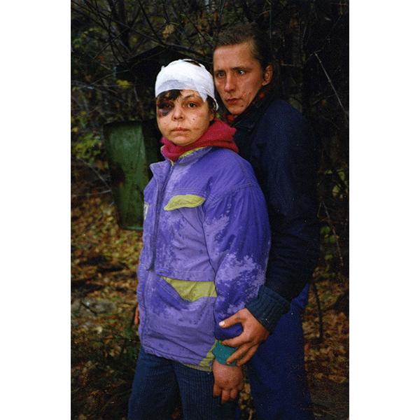 BORIS MIKHAILOV<br/>Case History #996, 1997/1998, 2014, c-print 61 x 40 cm, ed.of 10